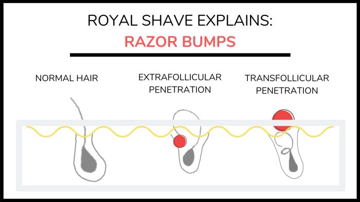 Ryal Shave explains razor bumps